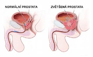prostata2